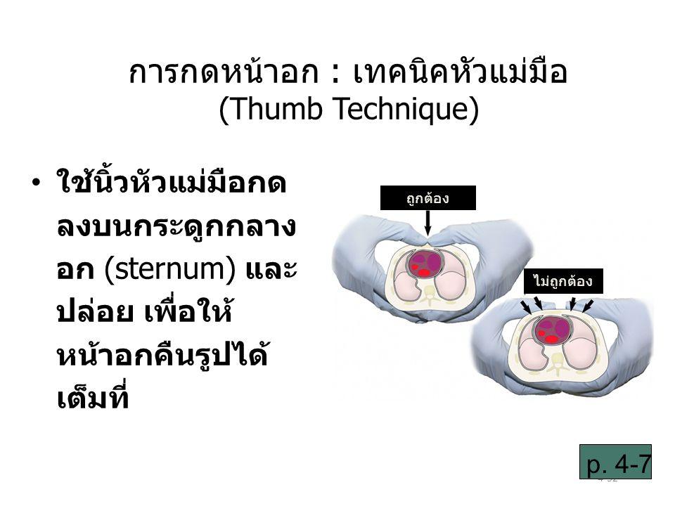 การกดหน้าอก : เทคนิคหัวแม่มือ (Thumb Technique)