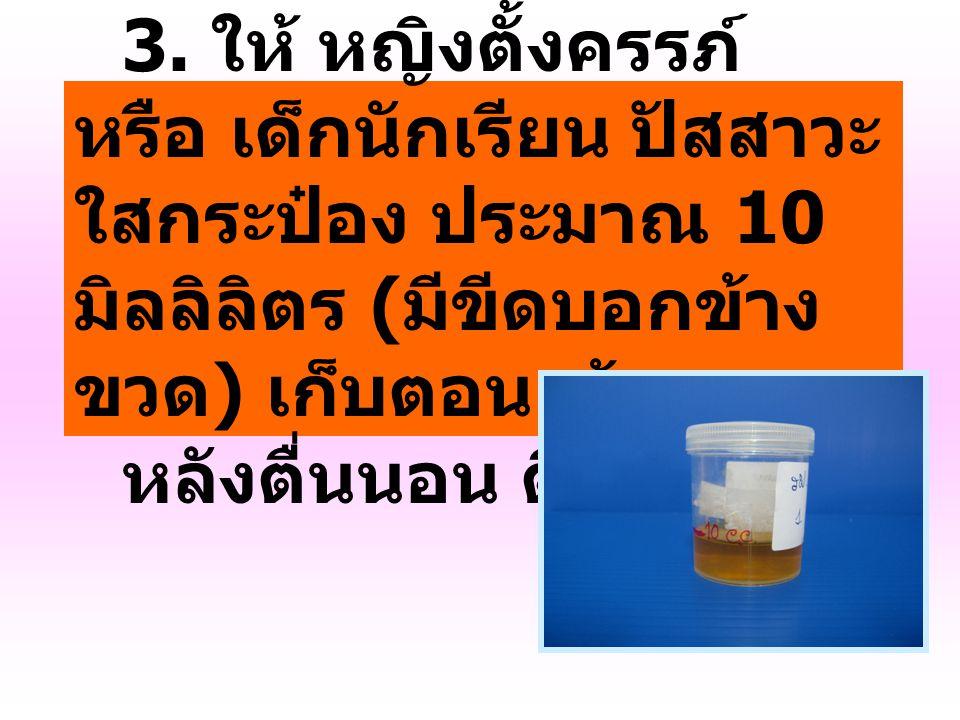 3. ให้ หญิงตั้งครรภ์ หรือ เด็กนักเรียน ปัสสาวะใสกระป๋อง ประมาณ 10 มิลลิลิตร (มีขีดบอกข้างขวด) เก็บตอนเช้า