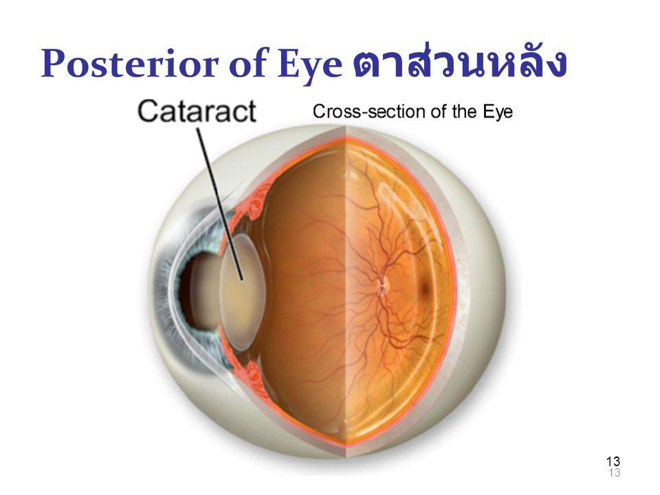 Posterior of Eye ตาส่วนหลัง