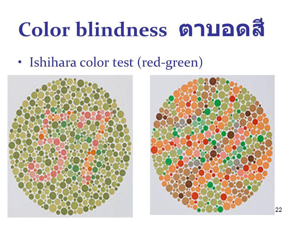 Color blindness ตาบอดสี