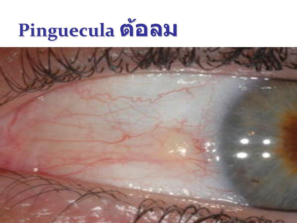Pinguecula ต้อลม