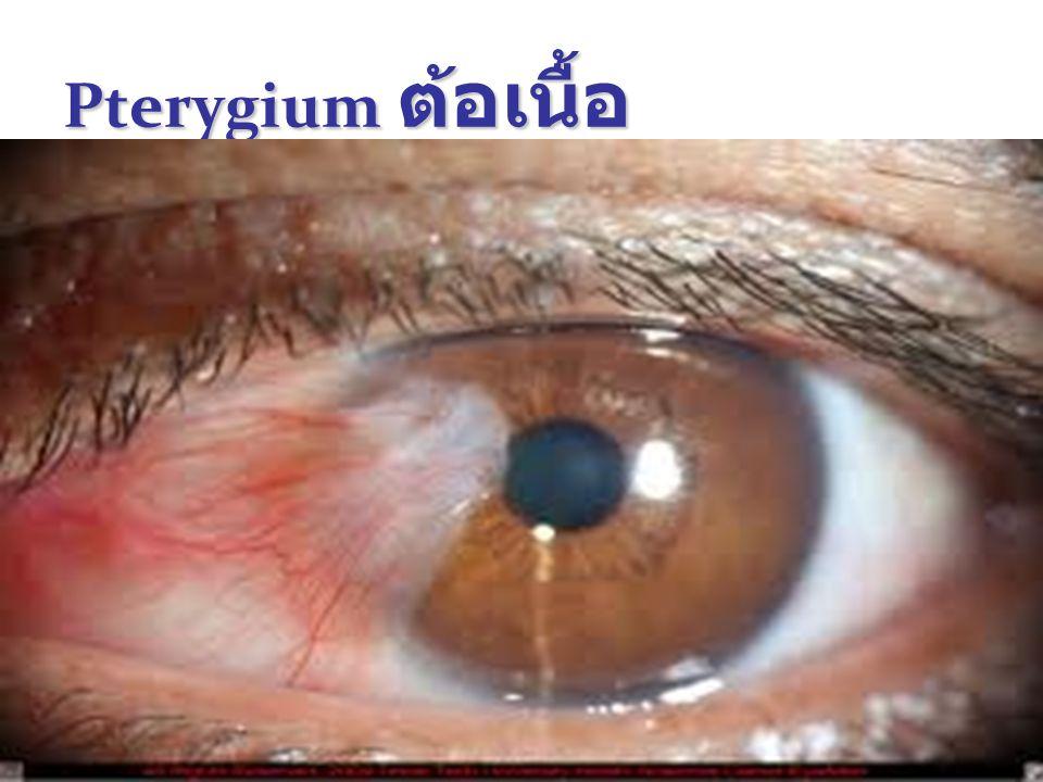 Pterygium ต้อเนื้อ