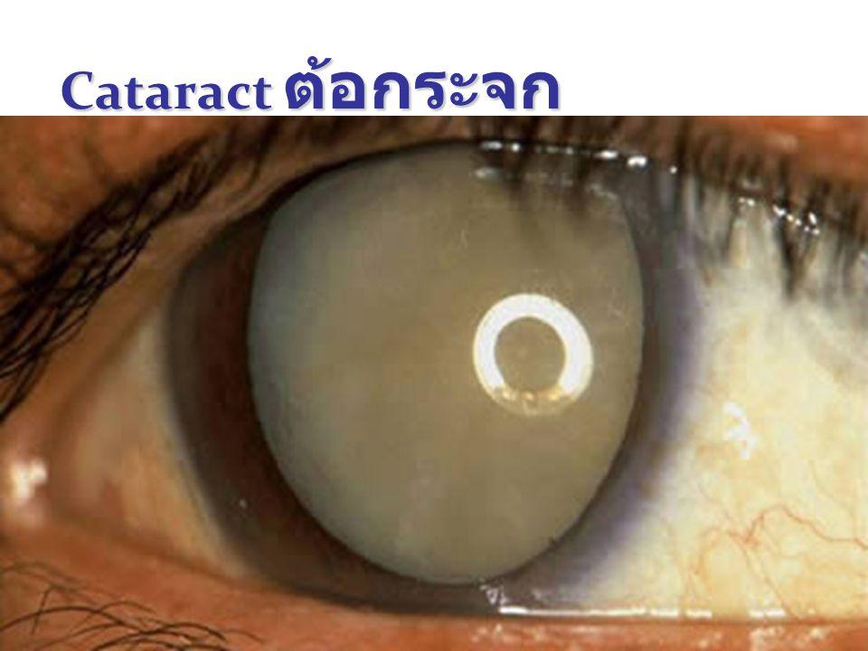 Cataract ต้อกระจก