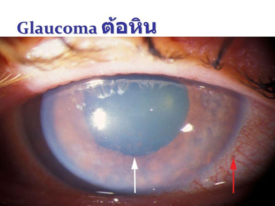 Glaucoma ต้อหิน