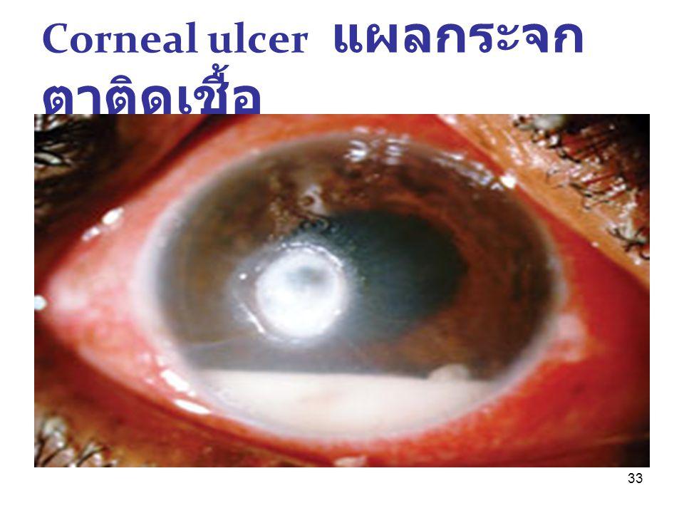 Corneal ulcer แผลกระจกตาติดเชื้อ