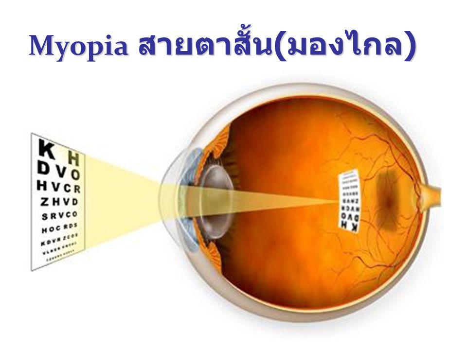 Myopia สายตาสั้น(มองไกล)