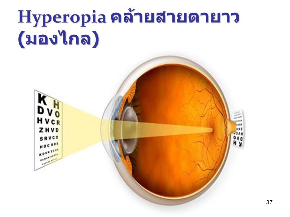 Hyperopia คล้ายสายตายาว(มองไกล)