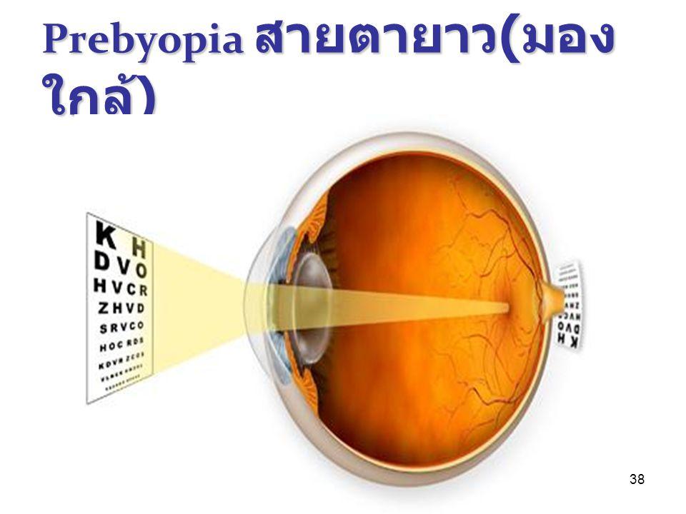 Prebyopia สายตายาว(มองใกล้)