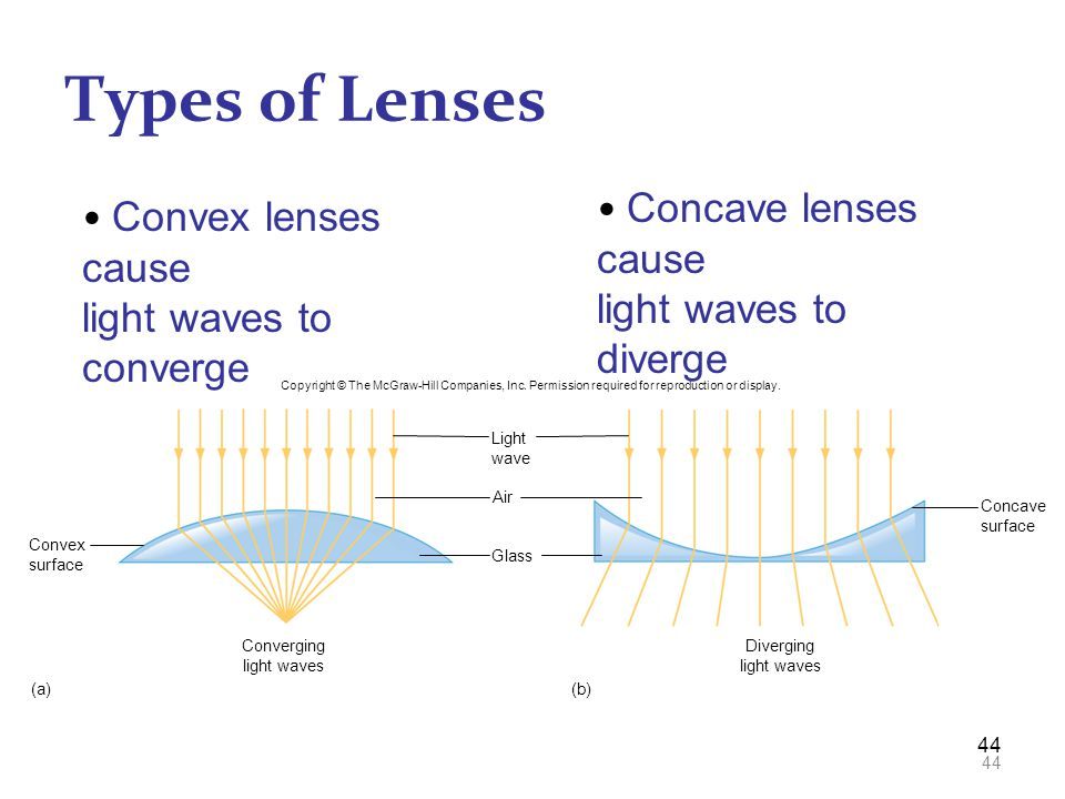 Types of Lenses Concave lenses cause Convex lenses cause