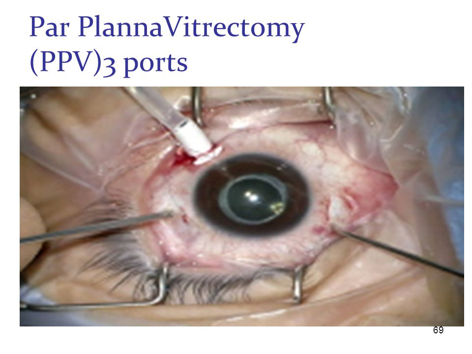Par PlannaVitrectomy (PPV)3 ports