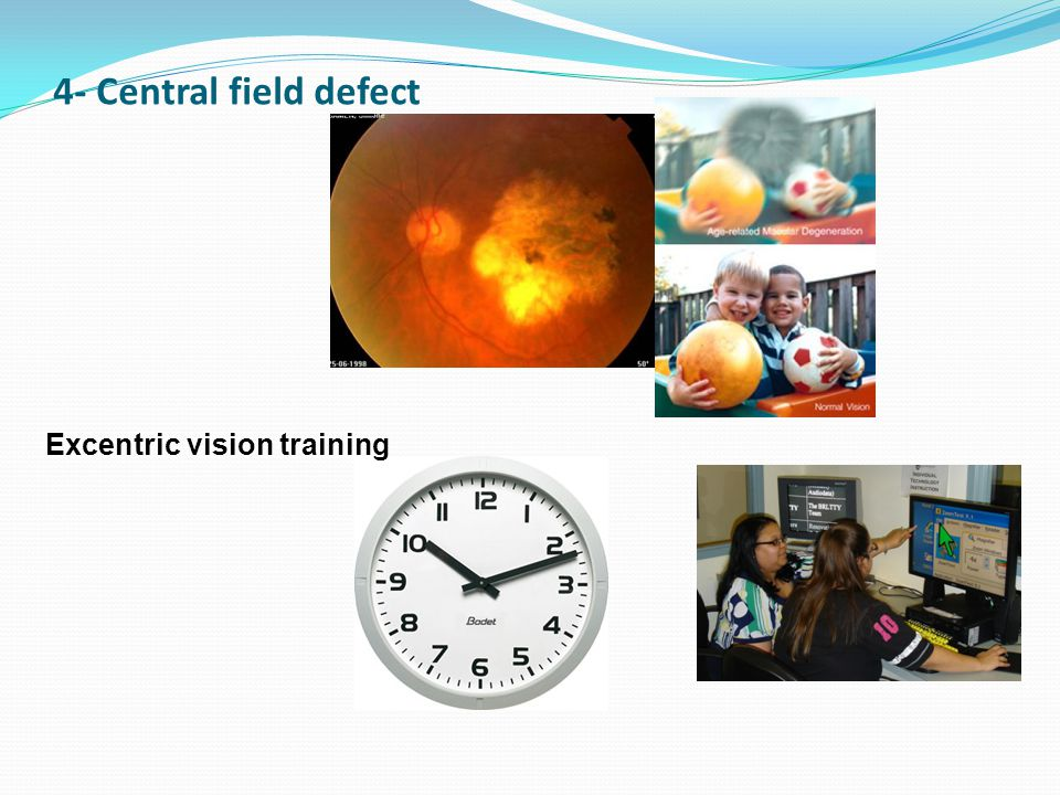 Excentric vision training