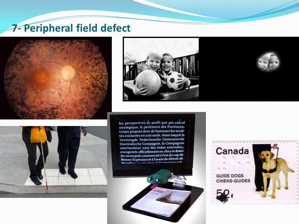 7- Peripheral field defect