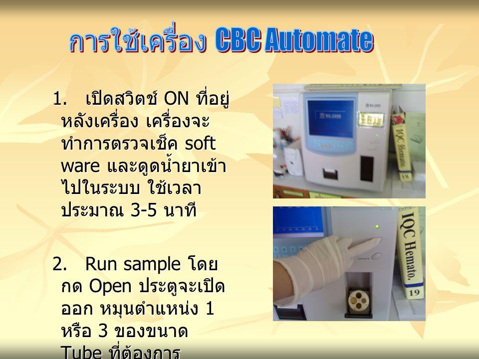 การใช้เครื่อง CBC Automate