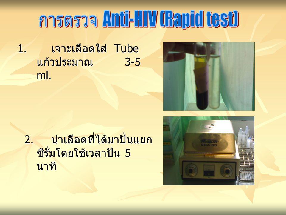 การตรวจ Anti-HIV (Rapid test)