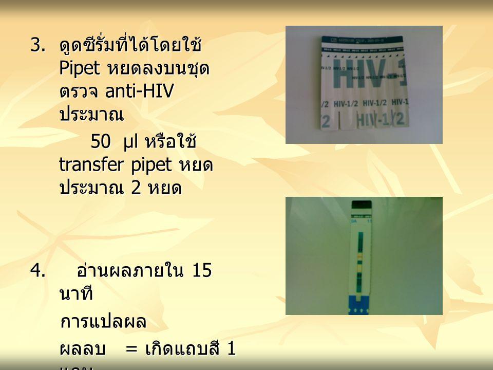 3. ดูดซีรั่มที่ได้โดยใช้ Pipet หยดลงบนชุดตรวจ anti-HIV ประมาณ