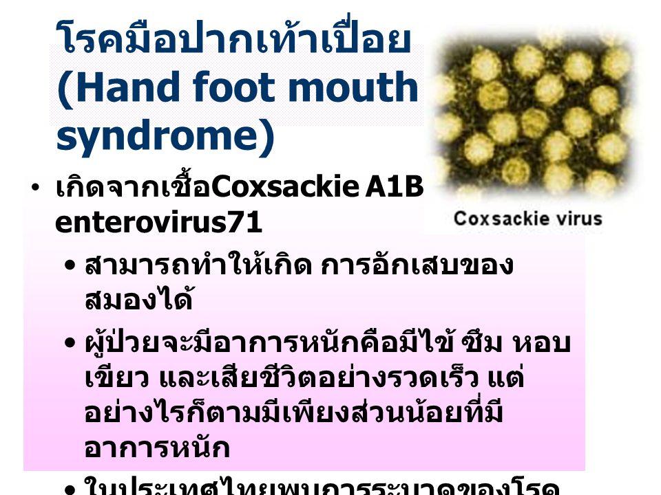โรคมือปากเท้าเปื่อย (Hand foot mouth syndrome)