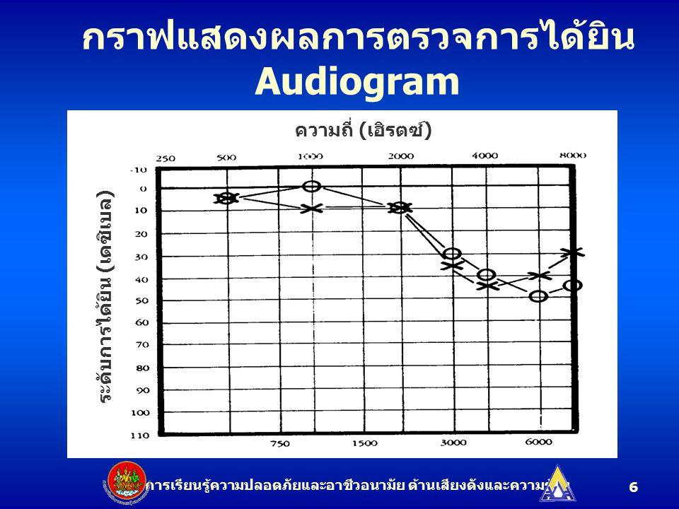 กราฟแสดงผลการตรวจการได้ยิน