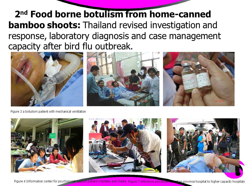 Figure 3 a botulism patient with mechanical ventilation