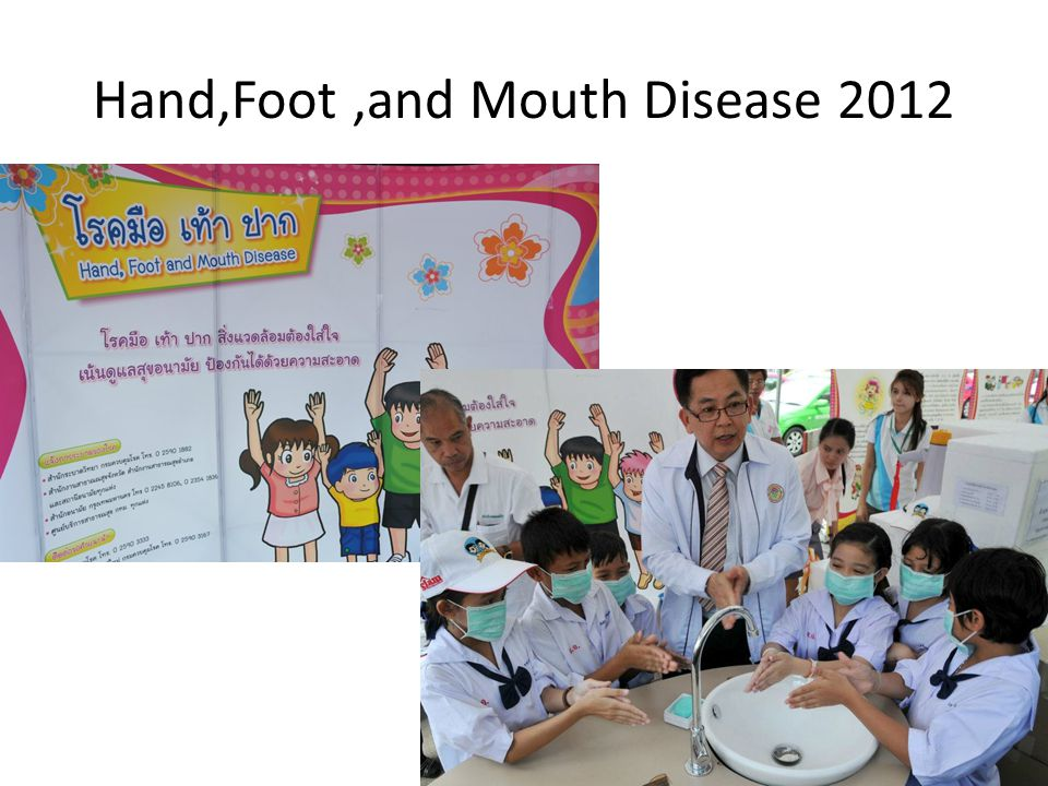Hand,Foot ,and Mouth Disease 2012