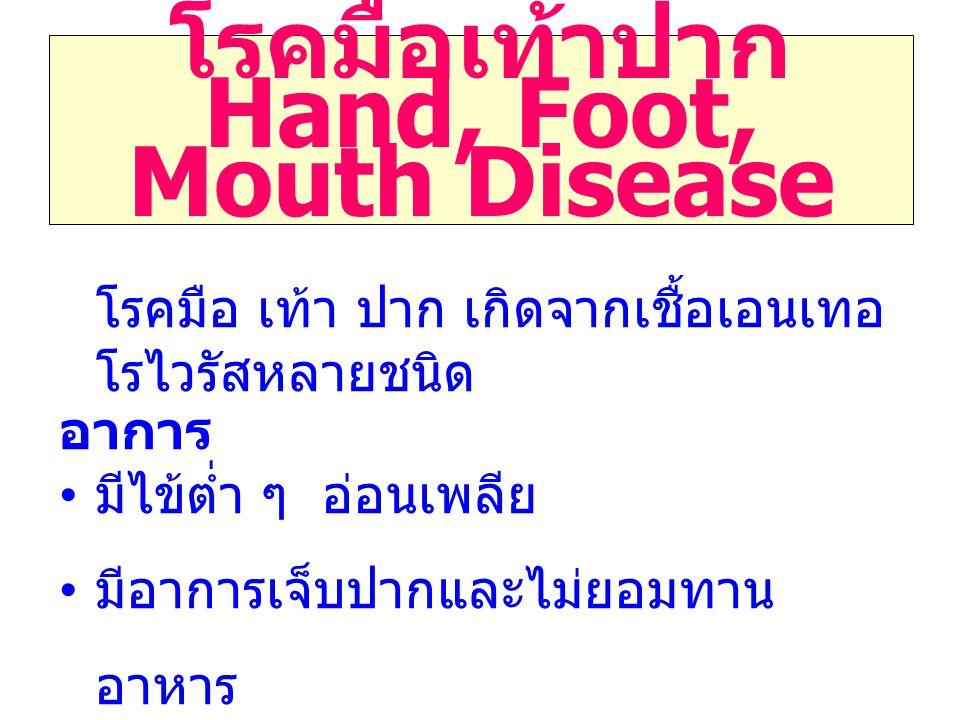 โรคมือเท้าปาก Hand, Foot, Mouth Disease