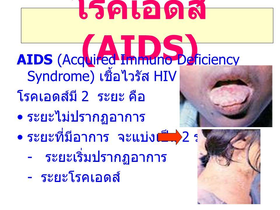 โรคเอดส์ (AIDS) AIDS (Acquired Immuno Deficiency Syndrome) เชื้อไวรัส HIV. โรคเอดส์มี 2 ระยะ คือ.