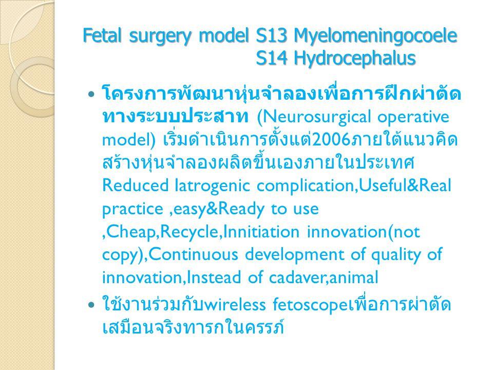 Fetal surgery model S13 Myelomeningocoele S14 Hydrocephalus