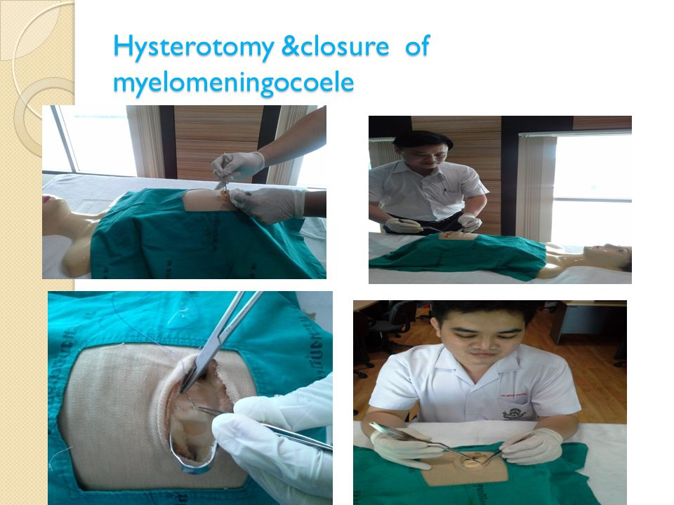 Hysterotomy &closure of myelomeningocoele