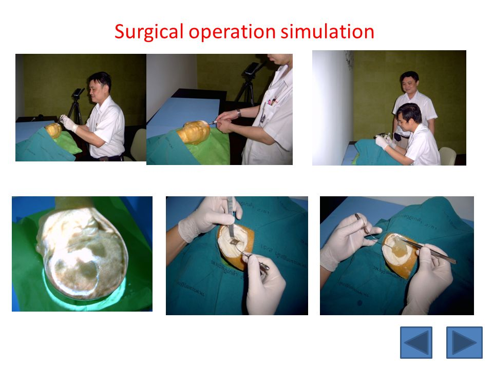 Surgical operation simulation