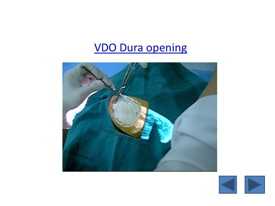VDO Dura opening