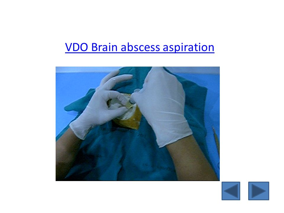 VDO Brain abscess aspiration