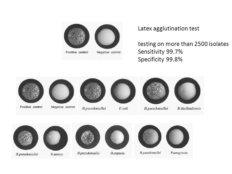 Latex agglutination test
