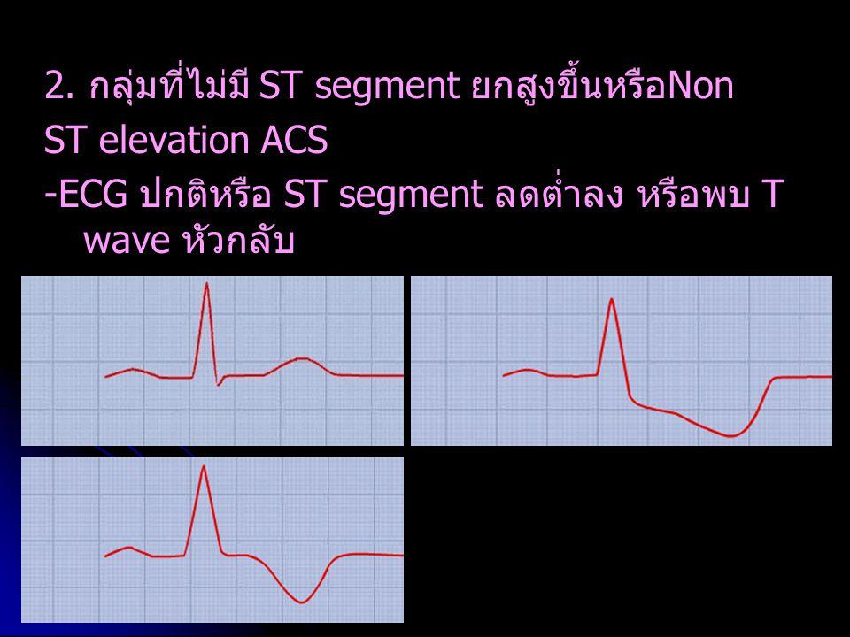 2. กลุ่มที่ไม่มี ST segment ยกสูงขึ้นหรือNon