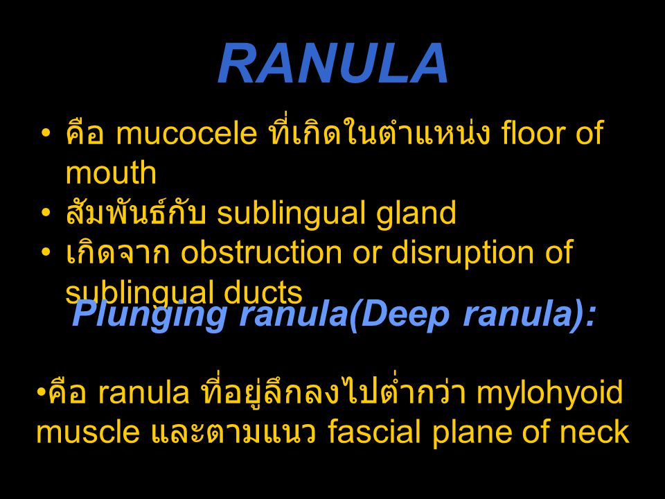 RANULA Plunging ranula(Deep ranula):