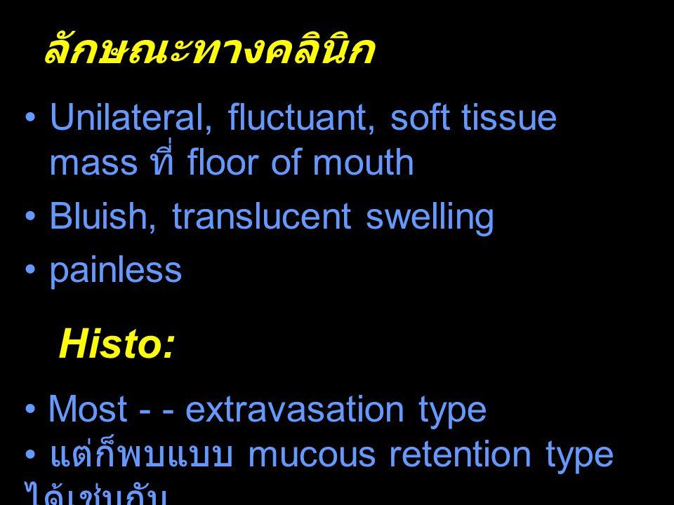 ลักษณะทางคลินิกl Histo: