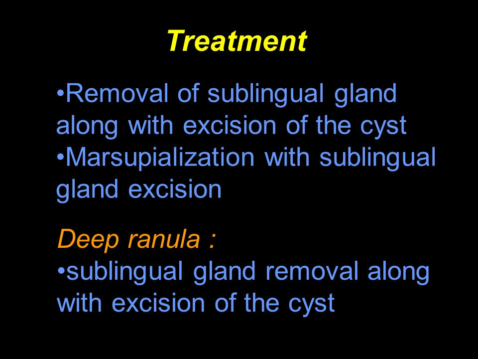 Treatment Removal of sublingual gland along with excision of the cyst
