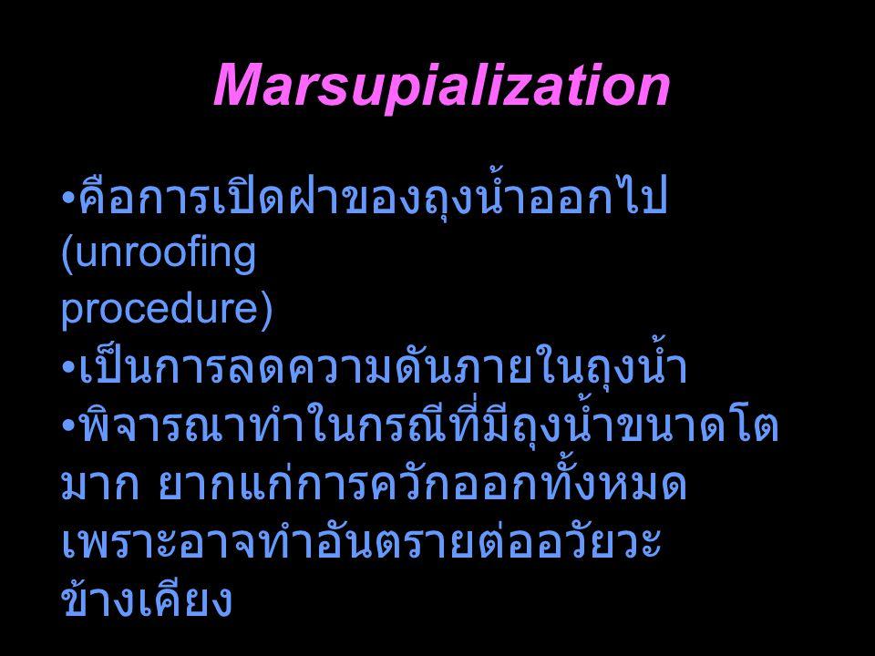 Marsupialization คือการเปิดฝาของถุงน้ำออกไป (unroofing procedure)