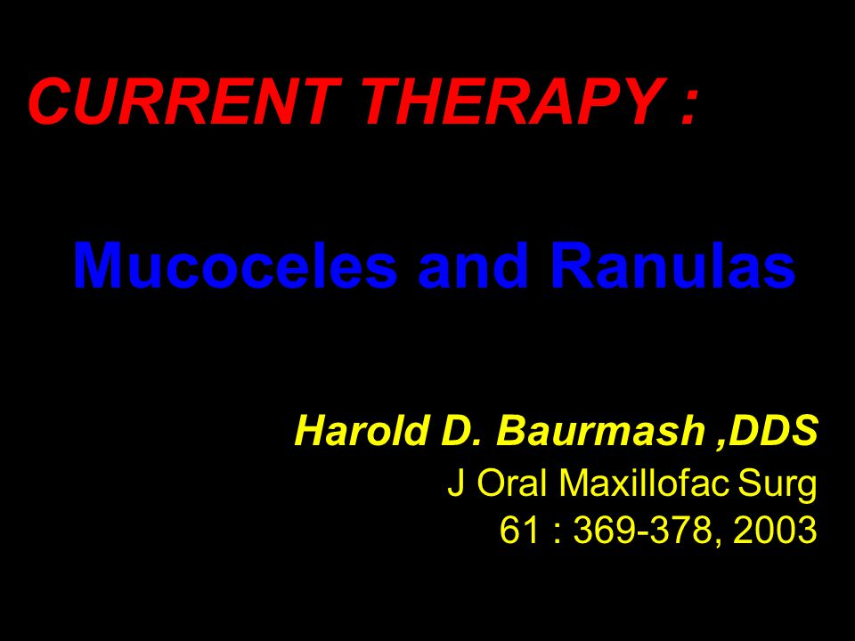 CURRENT THERAPY : Mucoceles and Ranulas Harold D. Baurmash ,DDS
