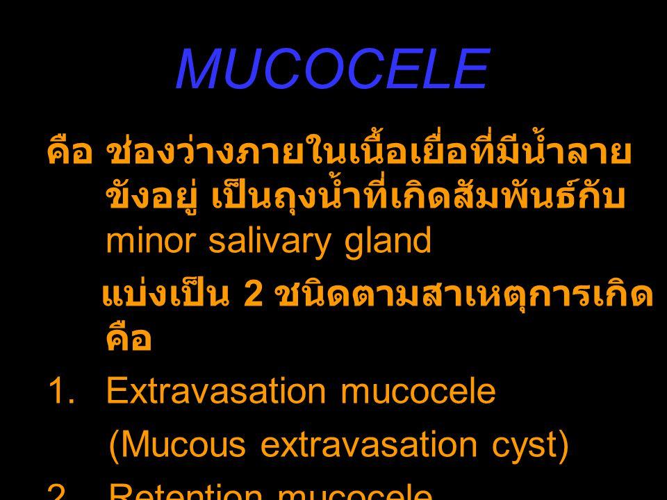 MUCOCELE คือ ช่องว่างภายในเนื้อเยื่อที่มีน้ำลายขังอยู่ เป็นถุงน้ำที่เกิดสัมพันธ์กับ minor salivary gland.
