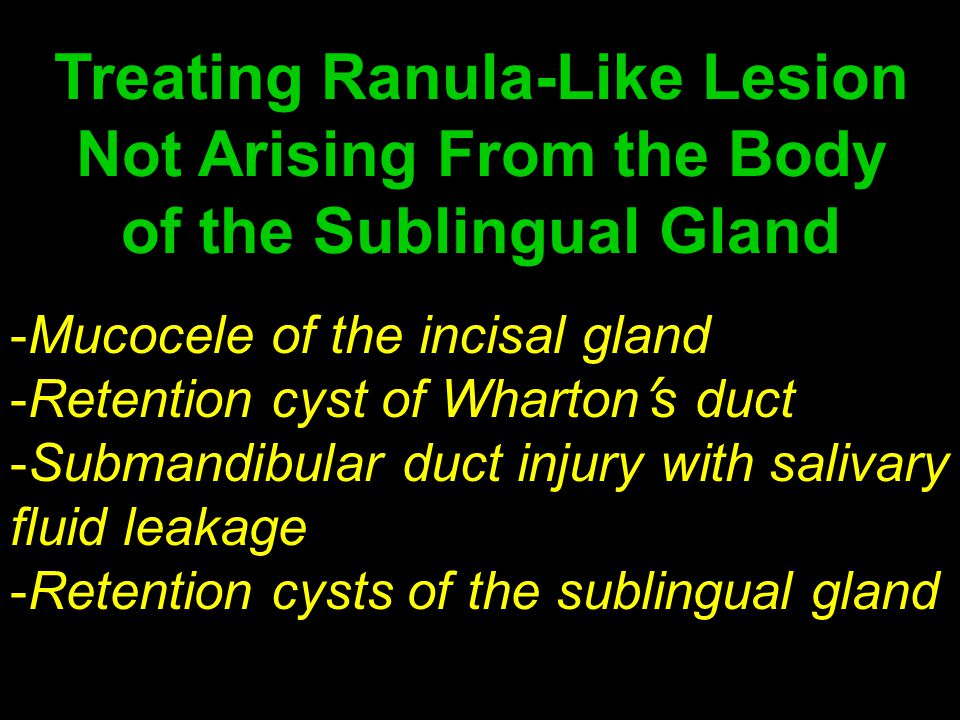 Treating Ranula-Like Lesion Not Arising From the Body of the Sublingual Gland