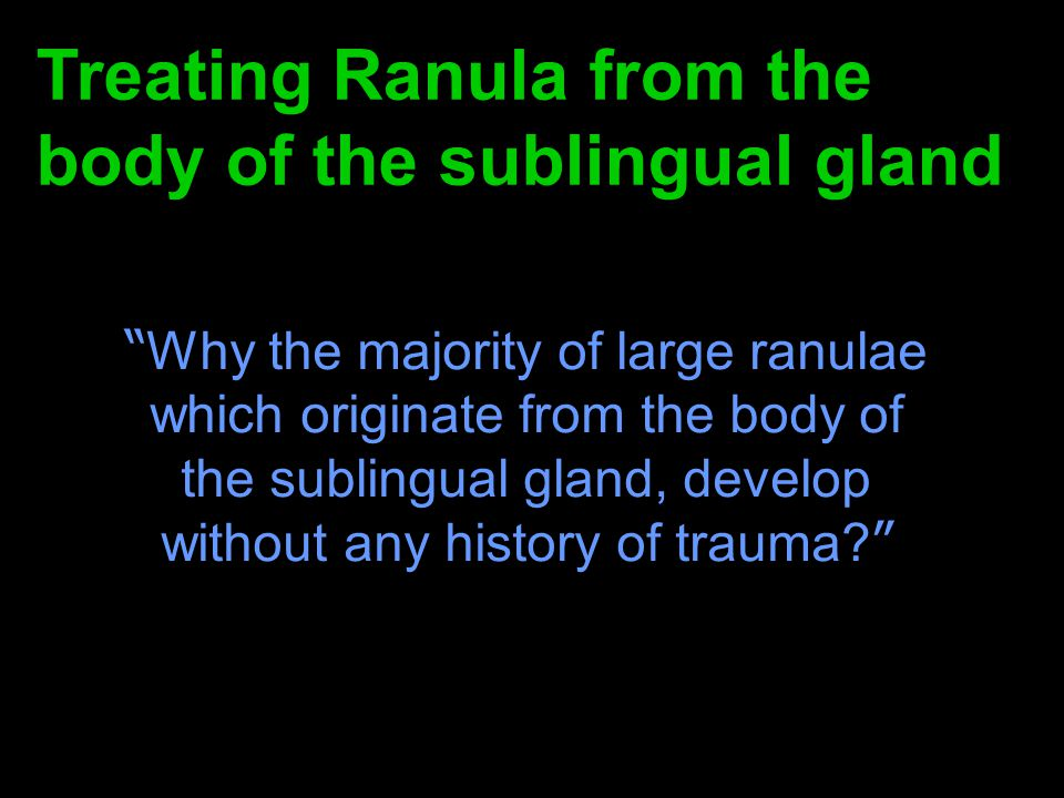 Treating Ranula from the body of the sublingual gland