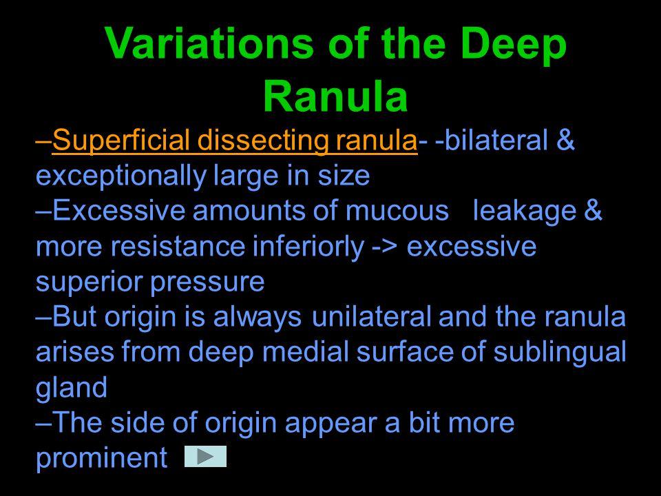 Variations of the Deep Ranula