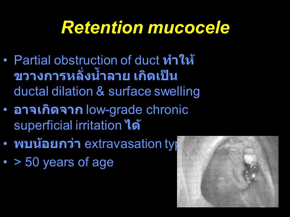 Retention mucocele Partial obstruction of duct ทำให้ขวางการหลั่งน้ำลาย เกิดเป็น ductal dilation & surface swelling.