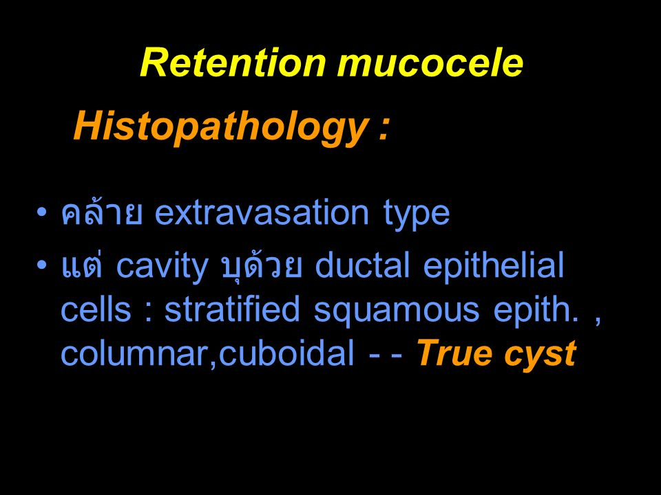 Retention mucocele Histopathology : คล้าย extravasation type
