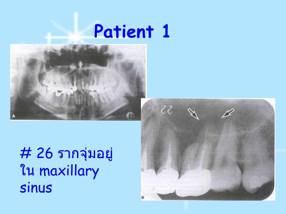 Patient 1 # 26 รากจุ่มอยู่ใน maxillary sinus