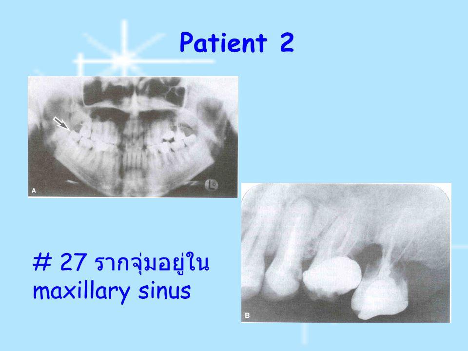 Patient 2 # 27 รากจุ่มอยู่ใน maxillary sinus