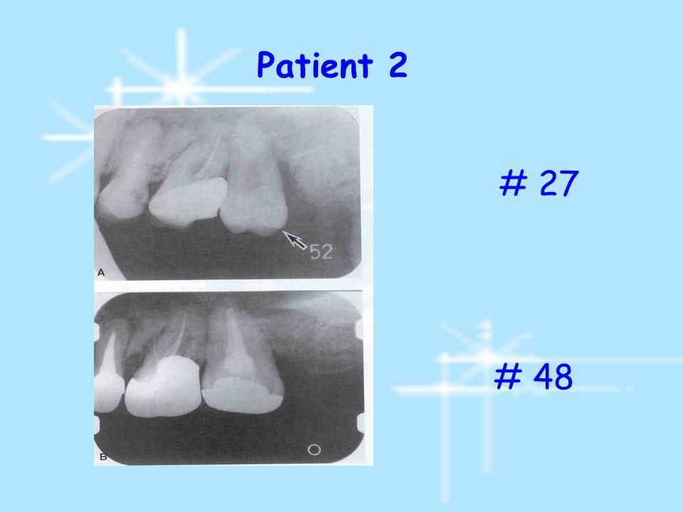 Patient 2 # 27 # 48