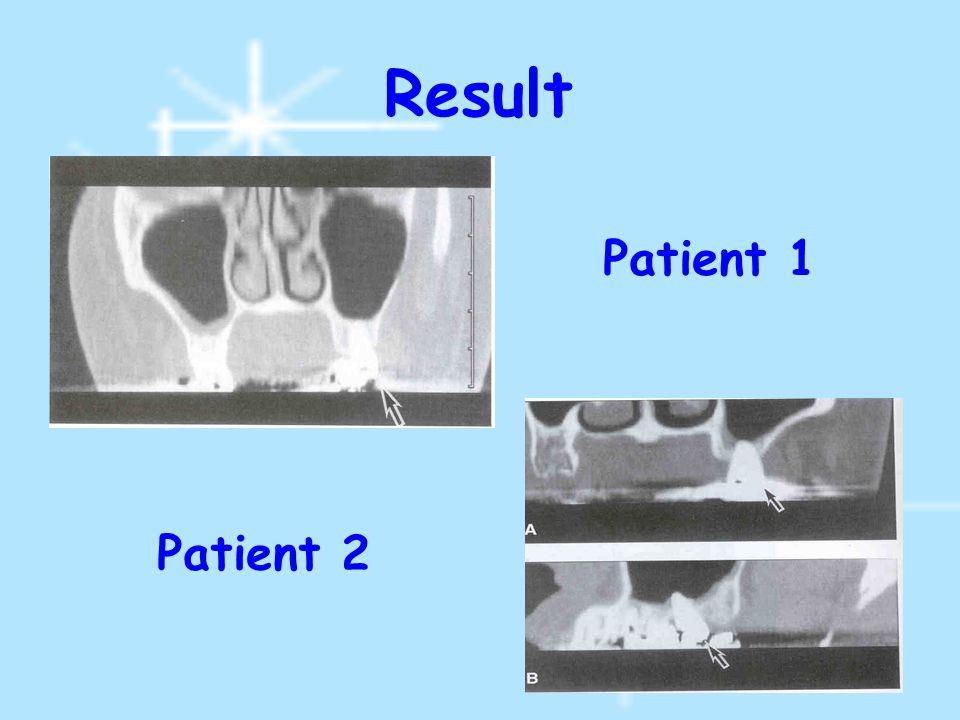 Result Patient 1 Patient 2