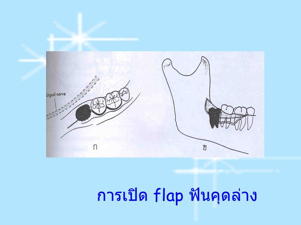 การเปิด flap ฟันคุดล่าง