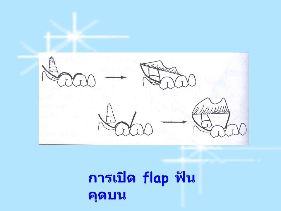 การเปิด flap ฟันคุดบน