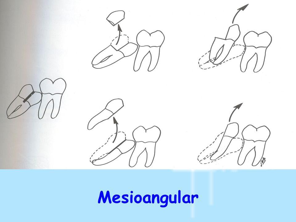 Mesioangular